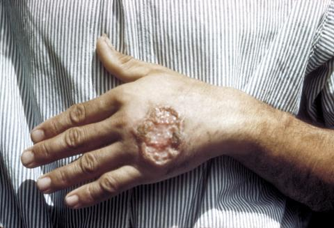 skin ulcer due to Cutaneous Leishmaniasis